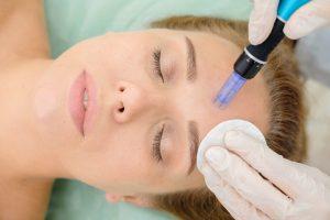 mesoterapia bdr hidratacion facial rejuvenecimiento fuengirola