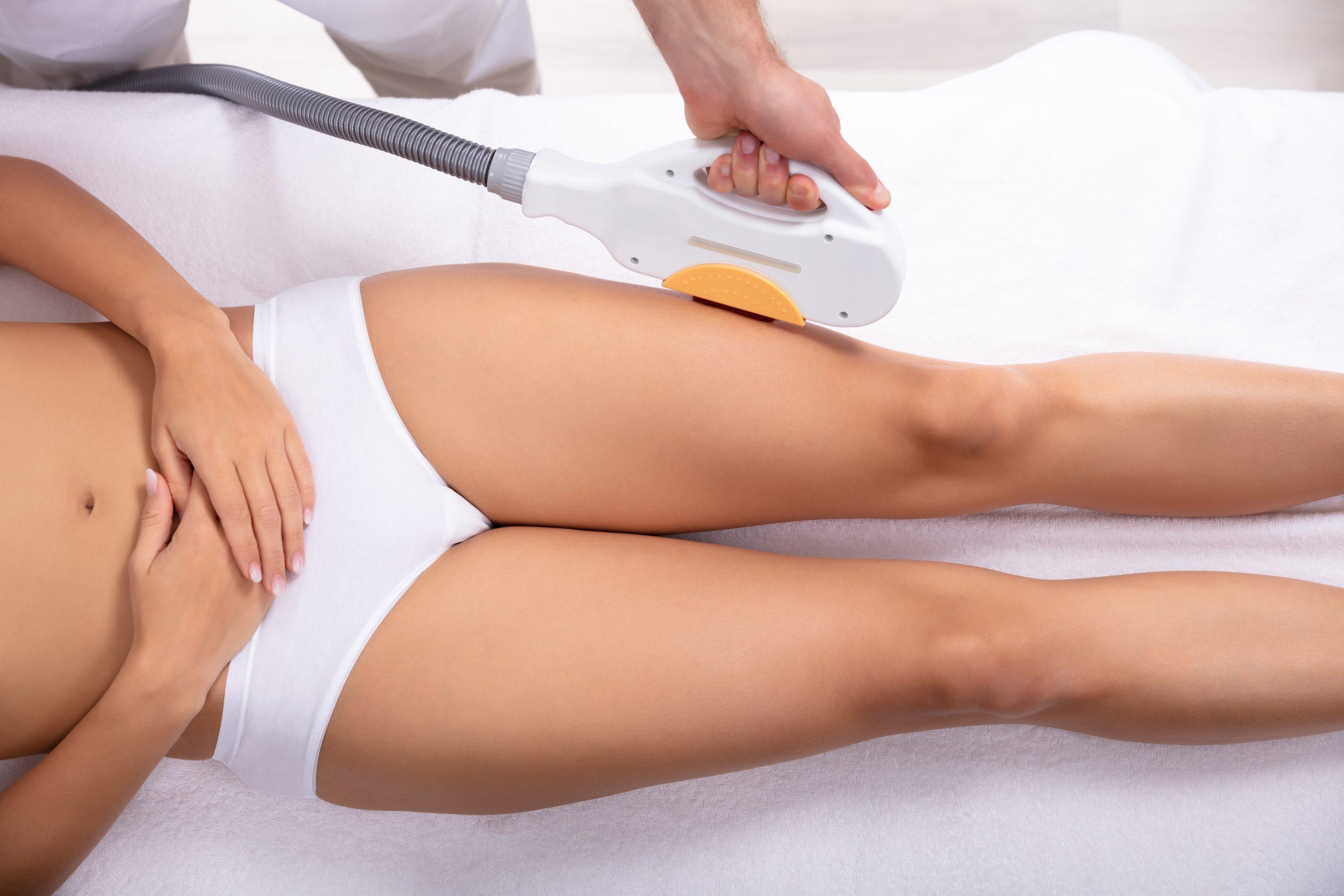depilación laser sin dolor estetica fuengirola