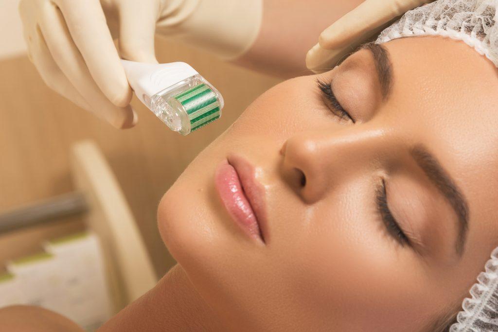 micro needling mesoterapia facial tratamiento cuidado rostro fuengirola